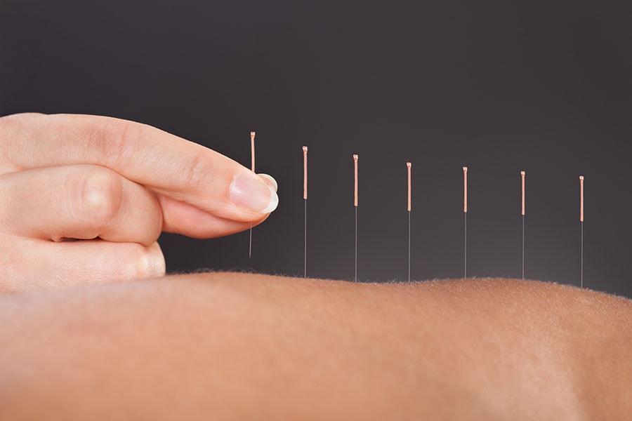 Agulhas de acupuntura colocadas ao longo das contas de uma mulher