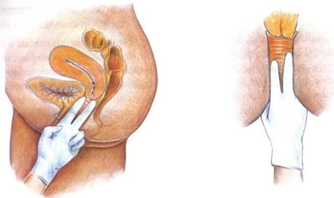 Desenho ilustrativo de toque vaginal realizado por fisioterapeuta