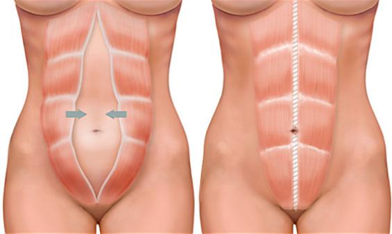 Desenho ilustrativo comparando a diástase abdominal feminina com um abdome normal