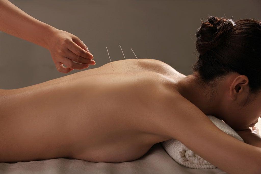 Mulher deitada bruços com agulhas de acupuntura nas contas